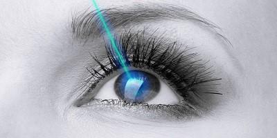 عمل ليزيك چشم