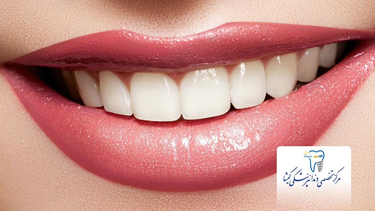 طراحی لبخند - لمینیت بدون تراش