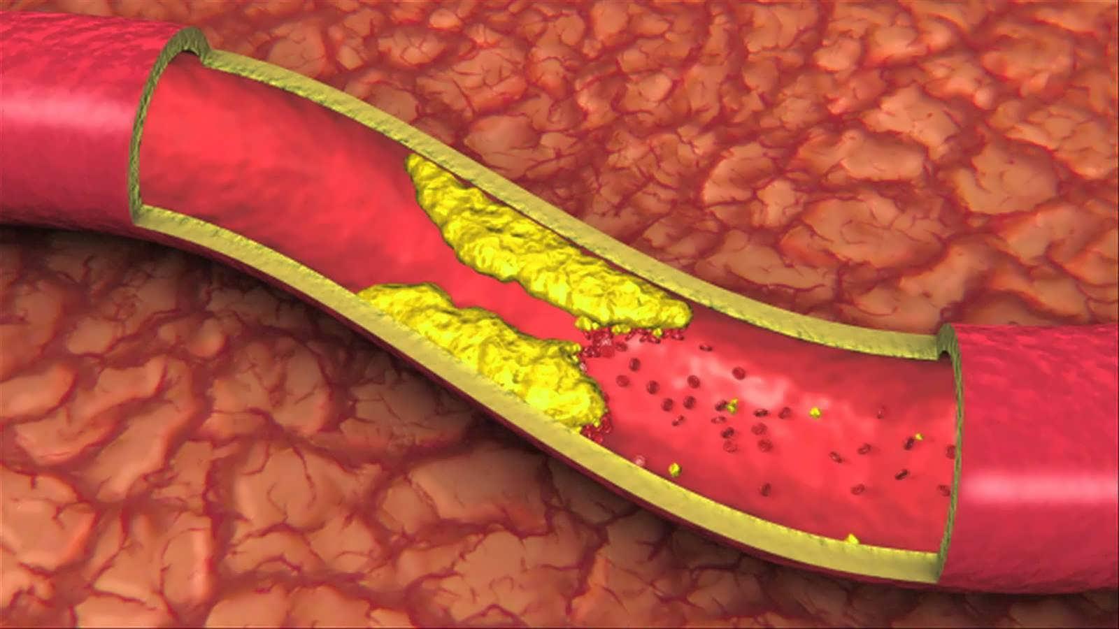 مبتلایان به چربی خون مصرف این خوراکی ترش را فراموش نکنند